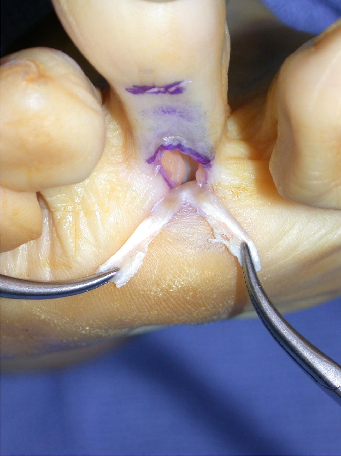 the use of flexor to extensor transfers for the correction